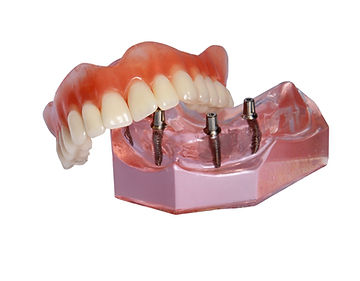 Denture lies on model of  top tooth jaw