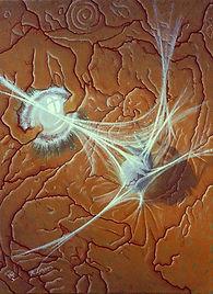 Fluoangiographist' Nightmare - 1990 - Oi