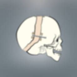 Cranialonskull600x600.png