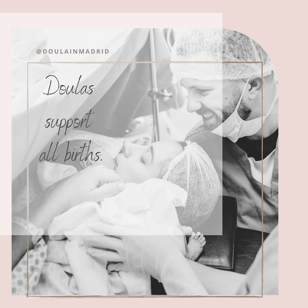 doulas support all births madrid