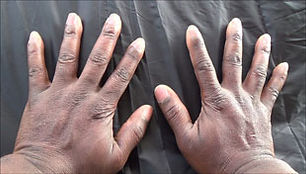 Skin-and-Color.jpg