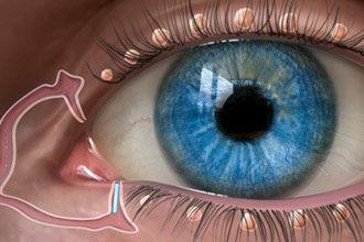 plugs lacrimal drainage dry eye symptoms