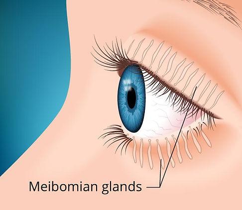 gland dysfunction eyelid mgd