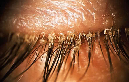 demodex irritaton eyelids dryness