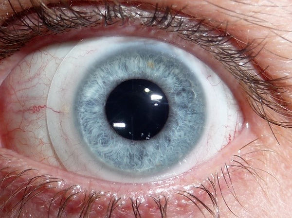 scleral contact lens for dry eye symptoms