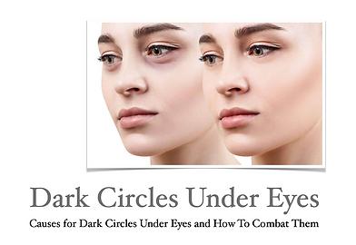 Dark Circles Under Eyes Article at Skin