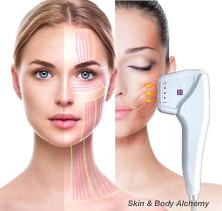 Ultherapy Hifu Skin Lift at Skin & Body
