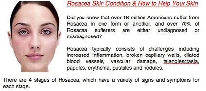 Rosacea%20skin%20help_edited.jpg