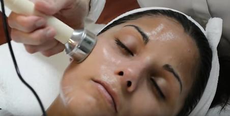 Rosacea Calming Treatment with Ultrasoun