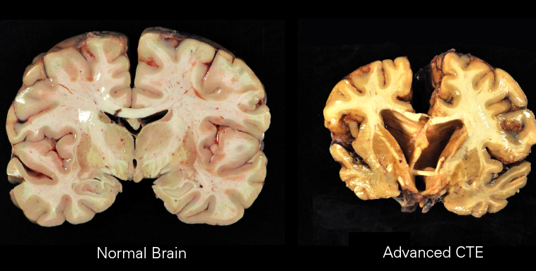 Normal brain sample compared to sample with CTE
