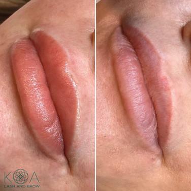 Lip Blush Treatment