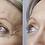 Dermaren Lumi Eyes-before and after