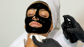 V CARBON PEEL - New Hollywood system without Laser