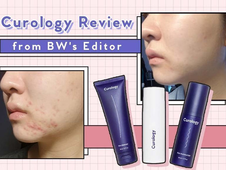 I Tried Curology For 7 Months for My Acne (A Review)