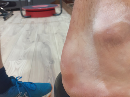 Sore Lump On The Back Of Your Heel?