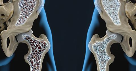 Pilates no tratamento da Osteoporose