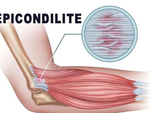 Epicondilite | Dor no cotovelo