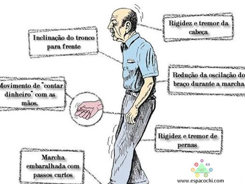 O que é o Parkinson?