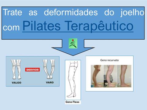 Trate as deformidades do joelho com Pilates Terapêutico