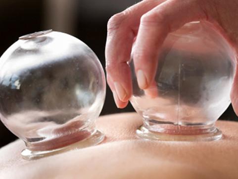 Cupping/Ventosaterapia: quais os benefícios para reduzir a dor e recuperar a performance?