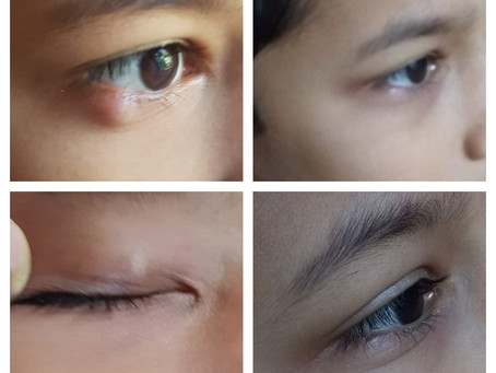 Recurrent Chalazion - No surgery needed.... Homeopathy healed
