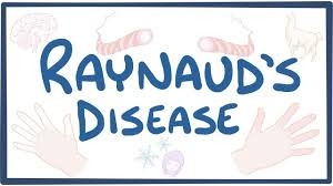 Homeopathy for Raynaud's disease
