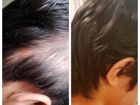 A case of Alopecia Areata