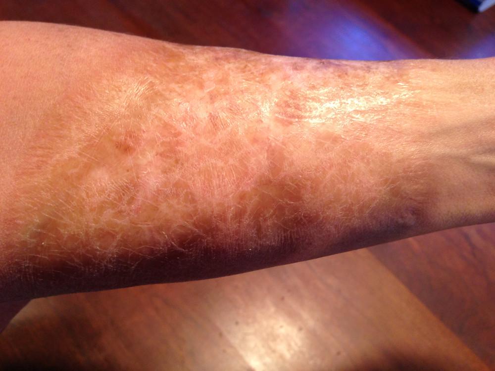 Me-Forearm Scar