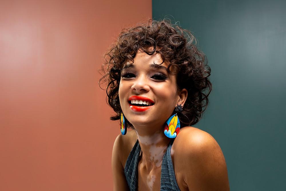 Modelo Elaine Medeiros que possui vitiligo e ama suas manchinas.