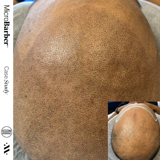 microbarber smp scalp micropigmentation regina saskatchewan canada saskatoon