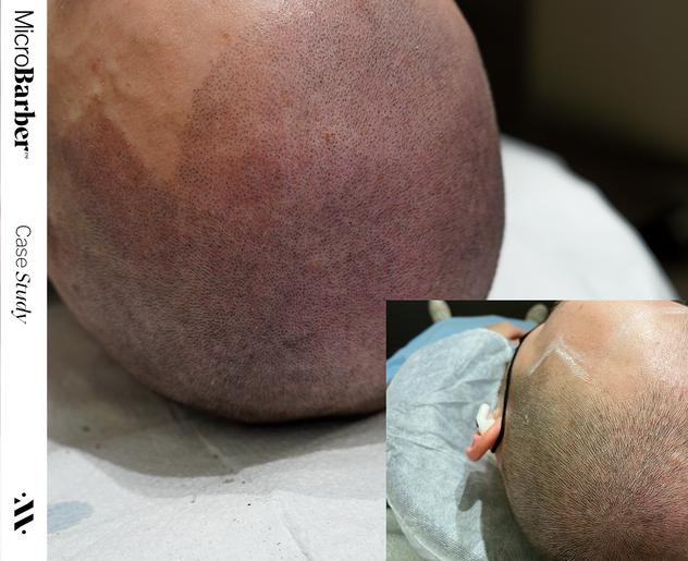 microbarber smp micropigmentation scalp regina saskatoon