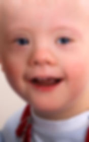 Down Syndrome Boy smiling with joy in his eyes