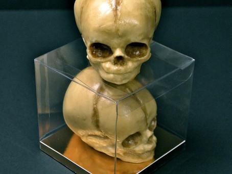 Chocolate Skulls and Anatomy Cakes