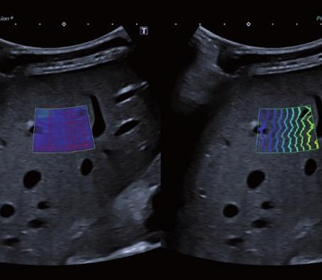 Elastografia Ultrassônica Hepática