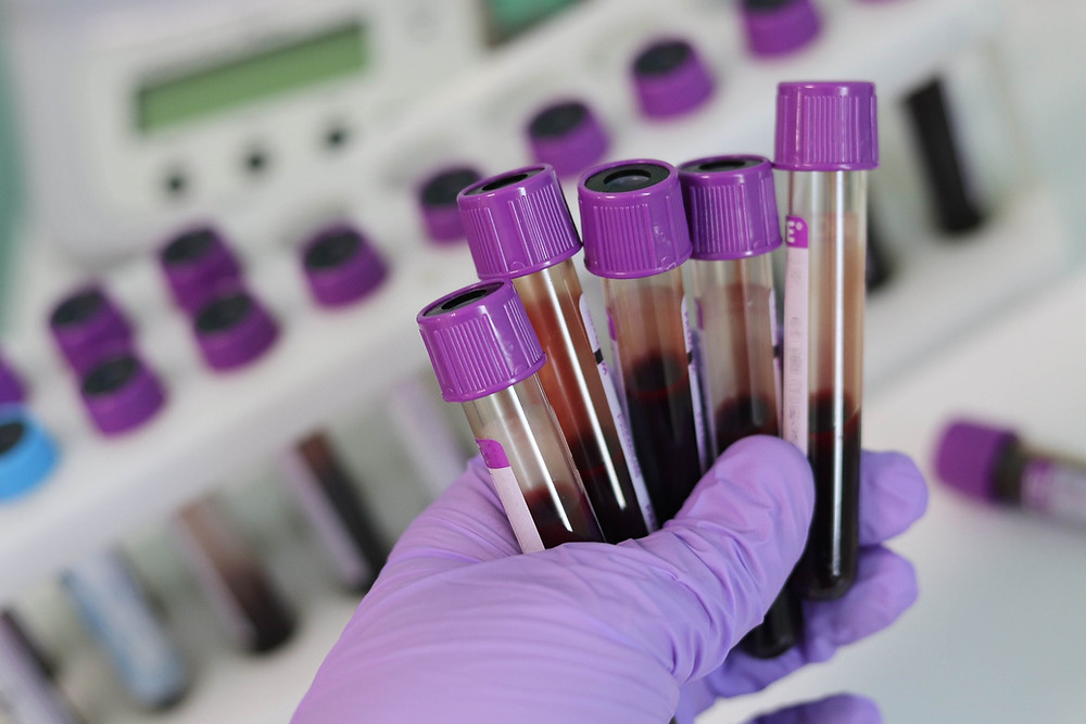 Irrelevant blood tests requested for your symptoms