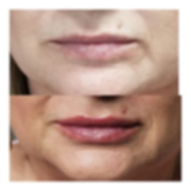 Lips1.jpg