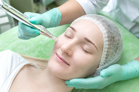 Cosmetologist doing microneedle to a you