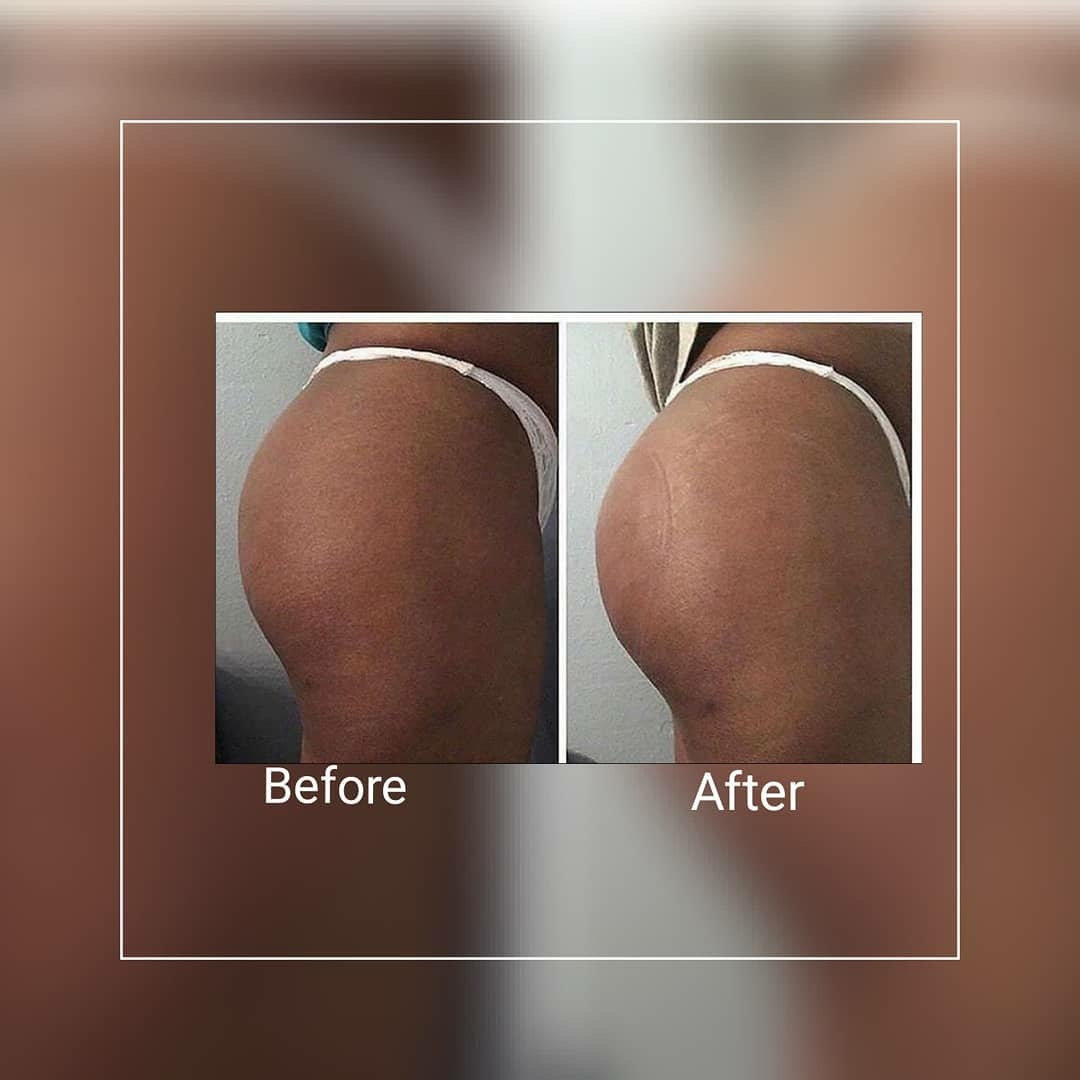 Buttock Vacuum Therapy (6 Sessions)