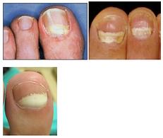 Proximal-subungual-onychomycosis-768x648