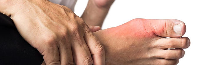 gout-flare-up-in-foot-1024x315.jpg