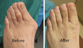 Bunion-before-and-after2-1024x600.jpg