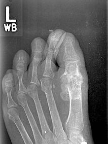 Swanson-implant.jpg