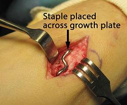 Staple-across-growth-plate-768x640.jpg