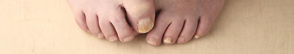 man-tries-to-hide-his-toenails-2.jpg
