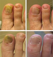 laser-toenail-treatment-2-768x836.png