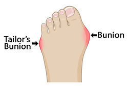 Bunion-and-Tailors-bunion-768x515.jpg