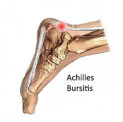 Posterior-heel-pain-Bursa1-768x763.jpg