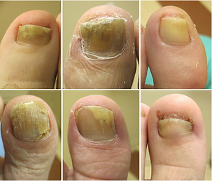 signs-of-fungal-toenails-1024x877.png