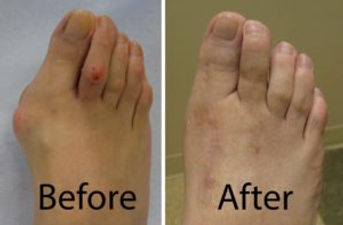 Bunion-before-and-after1-1-300x197.jpg