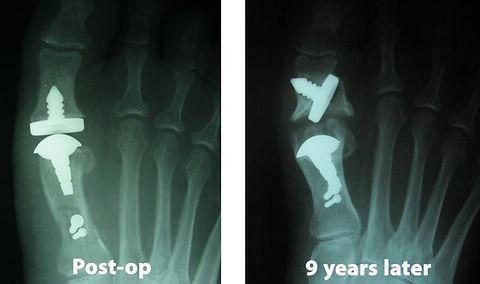Implant21-1024x606.jpg